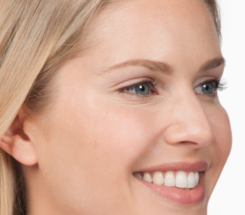 Womens Botox® Before and After Patient Photos