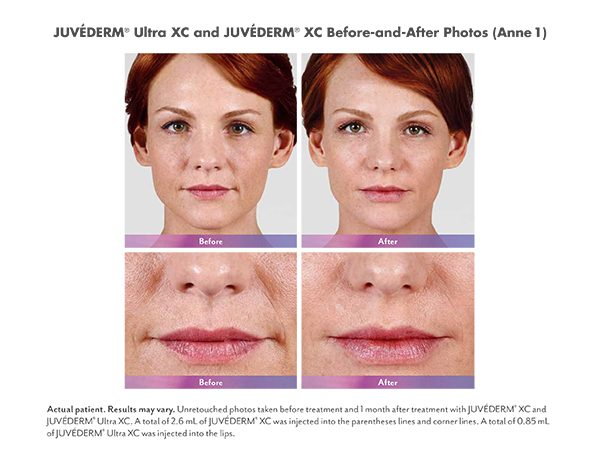 JUVÉDERM® XC Before and After Patient Photos