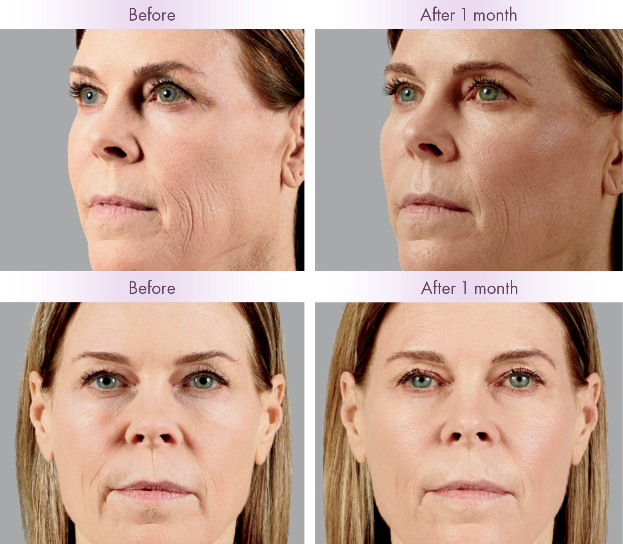 JUVÉDERM VOLUMA® Before and After Patient Photos